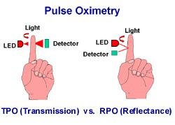 Transmittance and reflectance pulse oximetry in hindi